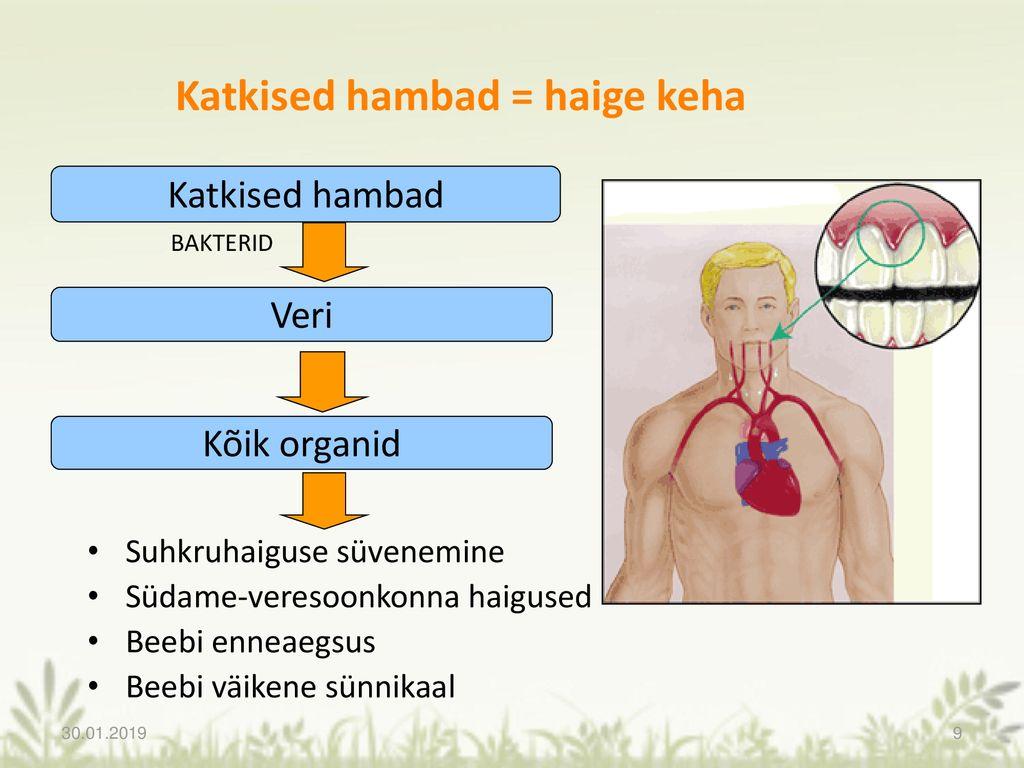Vere igemed haigete liigesed Madratsid, millel on valu liigesed