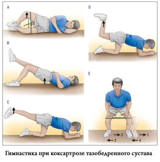 Artroosi ravi 2 3 kraadi
