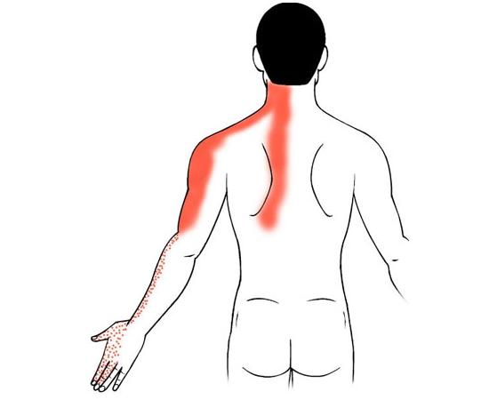 Folk oiguskaitsevahendeid ola liigestest Parast kahju valus liigeseid