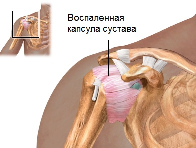 Olaprotsessi haigus, kuidas ravida Mis on kaasas artriit kaed