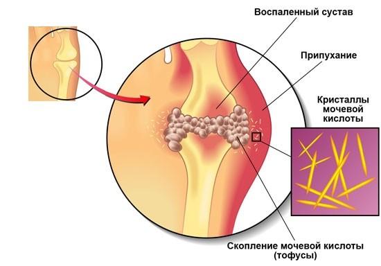 valu vasaku kae ola liigeses ja Juhtide ja Lati ravi