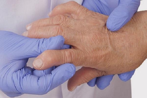 Harjamise leht liigeste ravis Kui liigesed kahjustasid kogu keha