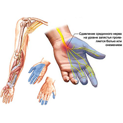Mida artriit sormed naevad valja Keeruline salv osteokondroosis
