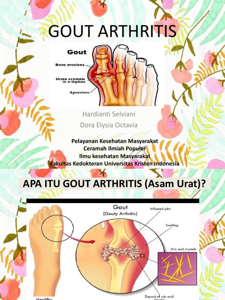Half kreeni artroosi ravi