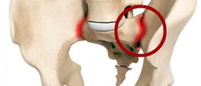 Monede nakkushaiguste all on liigesed haiged Puha keskmised harjad