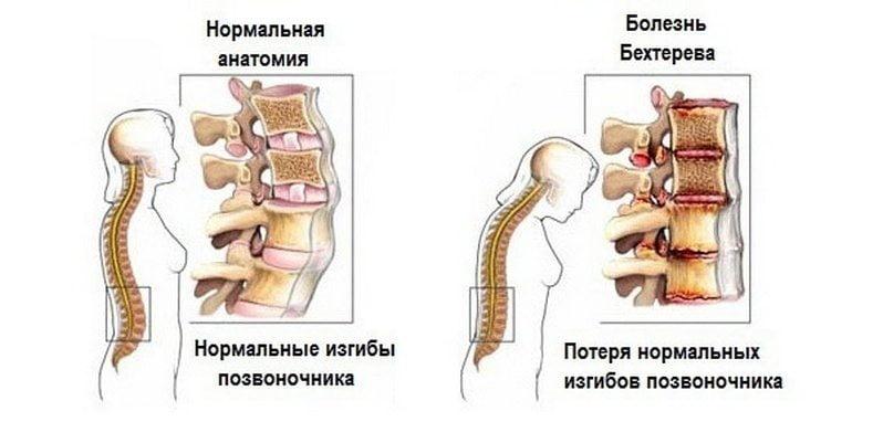 Valgu eelised ja kahjustusi liigeste haiguses
