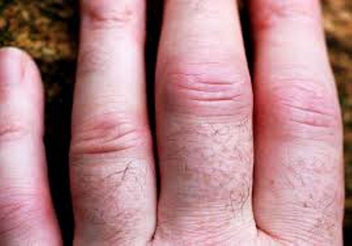 Kui nao liigesed haiget Artriidi ravi sormedel