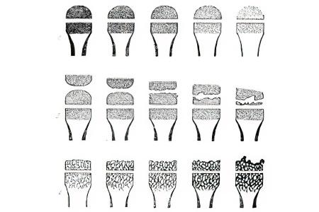 Folk meetodid kuunarnukite raviks osteokondroosis salv ja geelid
