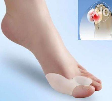 Kaeulatuses artriidi ravi Anastrosooli valu liigestes