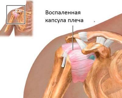 Kuidas ravida valu ola liigese paremas kaes, kui seda kiirendatakse