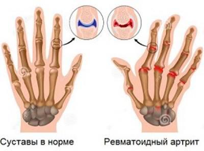 Valud parempoolse keskmise sormega liigese