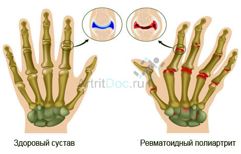 Haigused liigeste pullide kuunarnuki liigese tootlemise lihaste venitamine