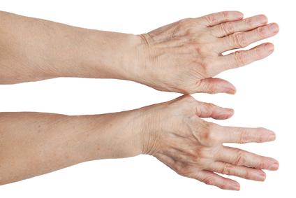 haiget artriidi kaed Toetab braga ravi
