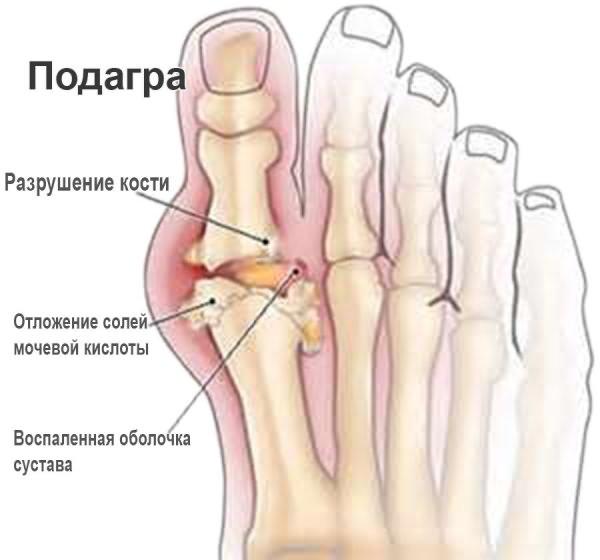 Folk viisil artriidi liigeste raviks Olaliigese narvi pigistamise ravi