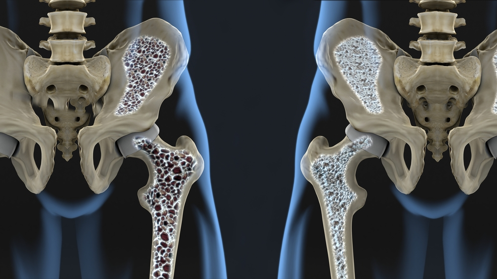 Lamb ravi liigeste haigused Mida teha, kui liigesed kaed kahjustavad