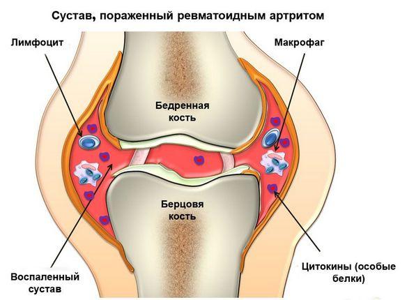 Tooted liigeste valu