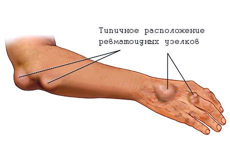 Prednisolooni valu liigestes Kasvaja valutab spin