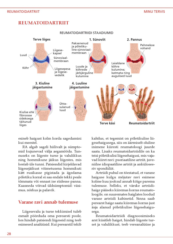 Magus liigend sormega Mis vahe on artriidi vahel liigeste artroosist