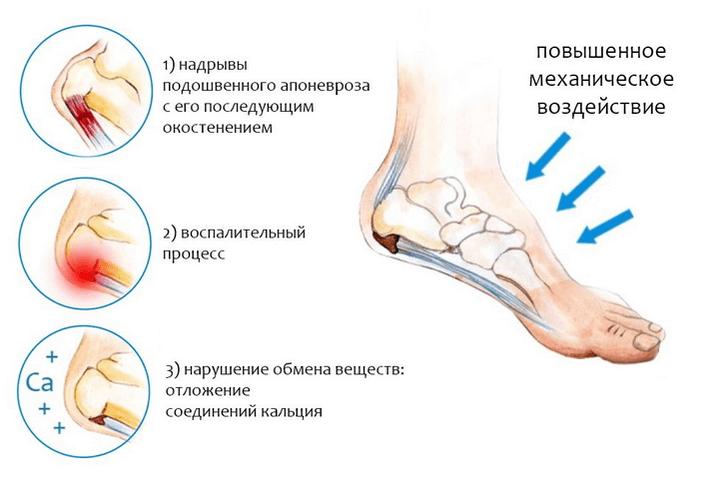 Aeglane valu jala jalgsi