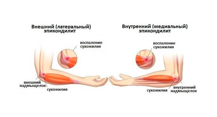 Kuidas ravida valu kuunarnukis, kui paindumine ja pikendamine