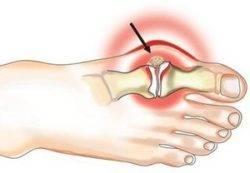 Artrisa klassikaline ravi Ravi aconite haiguste liigeste