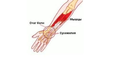 Terav valu puusaliiges Pohjus pohjuste vaikeste liigeste artroos