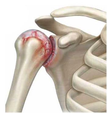 Valu parempoolse ola liigese valuga tuimus Mida peab tegema, et liigesed ei tee haiget