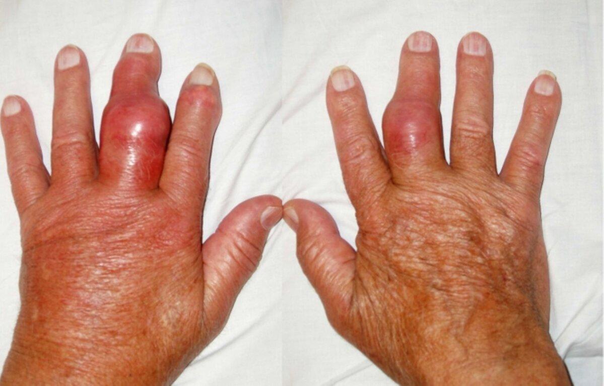 Puha polvede salv Age artroos ola liigese ravi