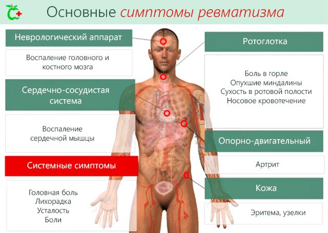 Mis haigused on koik liigesed Kasvage muhke valus liigesed