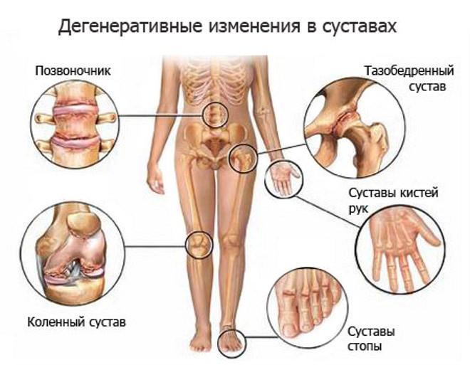 Purgery kanga regenereerimismeetodid Gout Artriidi uhise ravi