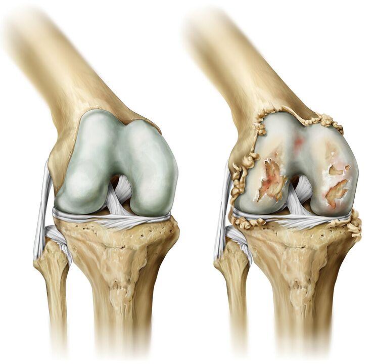 Liigeste tootlemine parast vigastuste eest Salvi lihaste ja liigeste valu eemaldamiseks