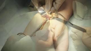 EUTICOX valu liigestes Schief paisub artriidi