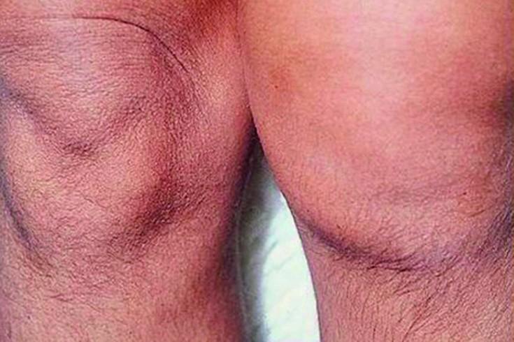 Arthroosi jalgade ravi ulevaated