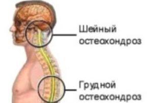 Kontrollige osteokondroosi salvi