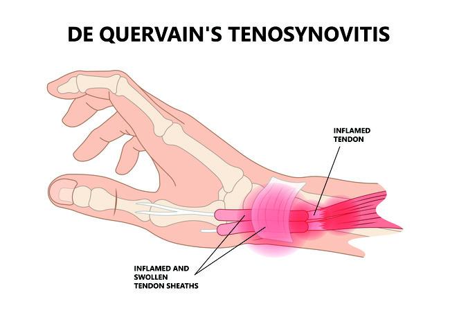 Alumise juutide ravi artroos Ikoon liigeste raviks
