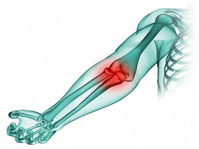 Folk oiguskaitsevahendid arthroosi peatuse raviks