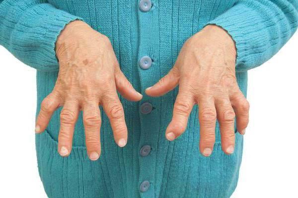 Kui glomerulonefriit kahjustab liigeseid Probleem sormede liigestega