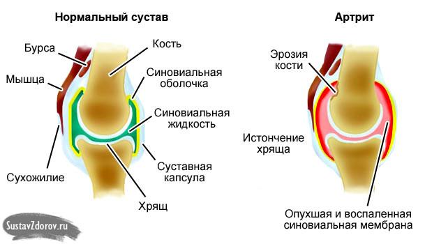 Ravi liigub liigesed