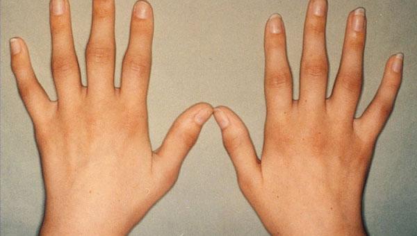 Varajane artriit sorme liigeste kahju valus polved