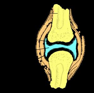 Osteokondroos ja liigesevalu