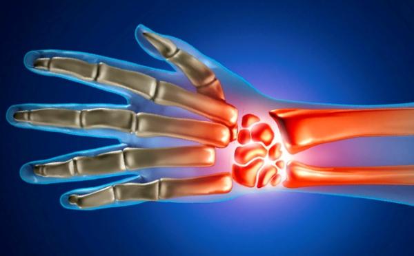 Kaed haiget artriidi anesteesia, kui tombeliidesed