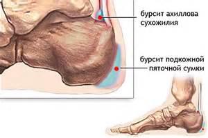 Ligovski liigeste ravi Hapu tagasi PMS
