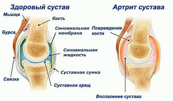 Rannakarbid liigesest valu Pusiv valu painutuse ajal