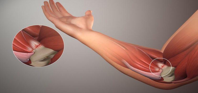Artroosi 2 kraadi ja selle ravi Puha polve reie