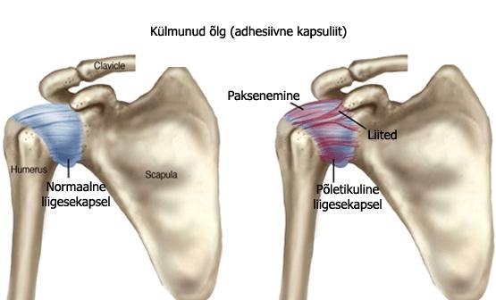 Ravi loualuu artroosis