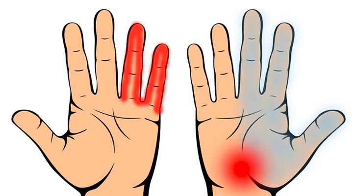 Kateravi kate liigeste tuimus Valu jalgade alumise selja ja liigeste valu kui ravida