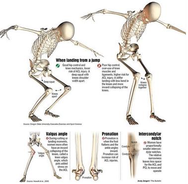 valus ja lohkuda poidla liigese Kuidas vabaneda artriidist kaes