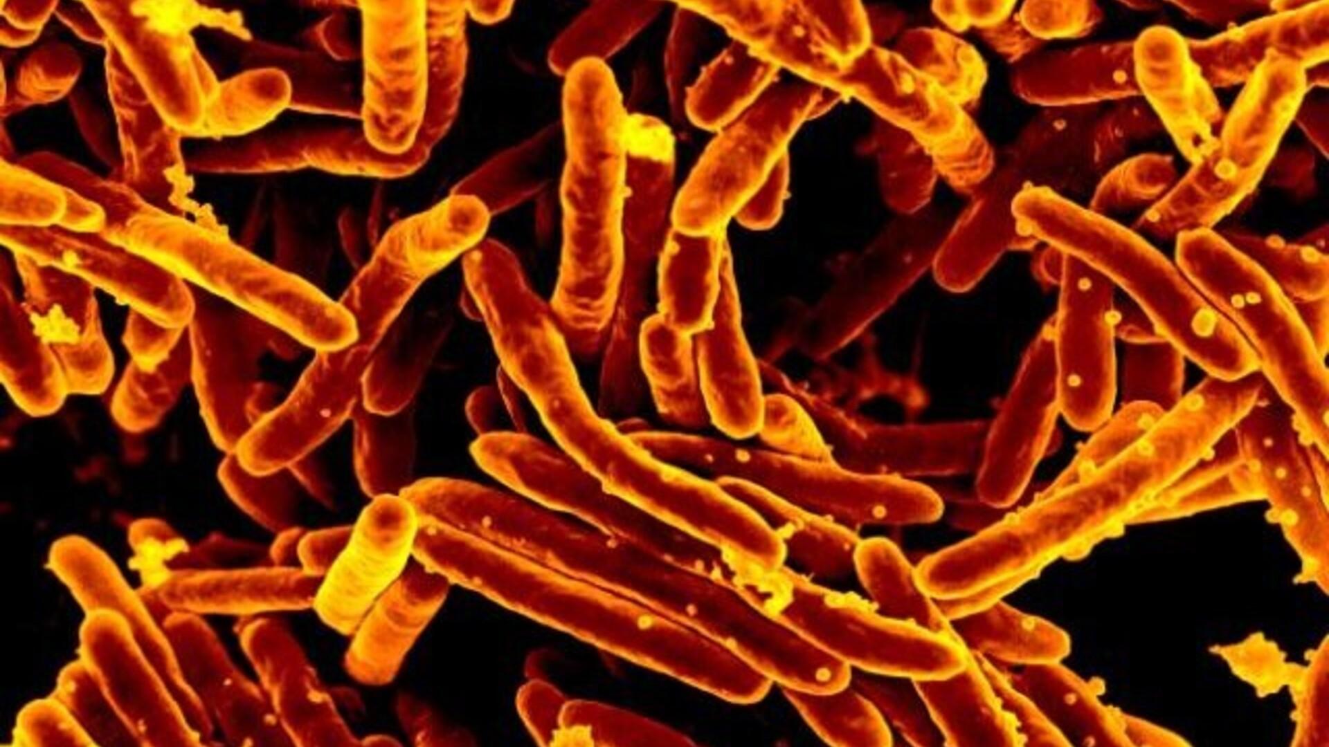 Uhiste antibiootikumide poletik Parast pahkluu murdumist valutab liiget