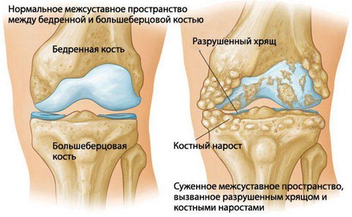 Pohjus pohjuste vaikeste liigeste artroos