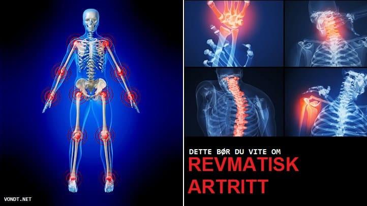 Parema kae liigeste ja lihaste valu pohjus